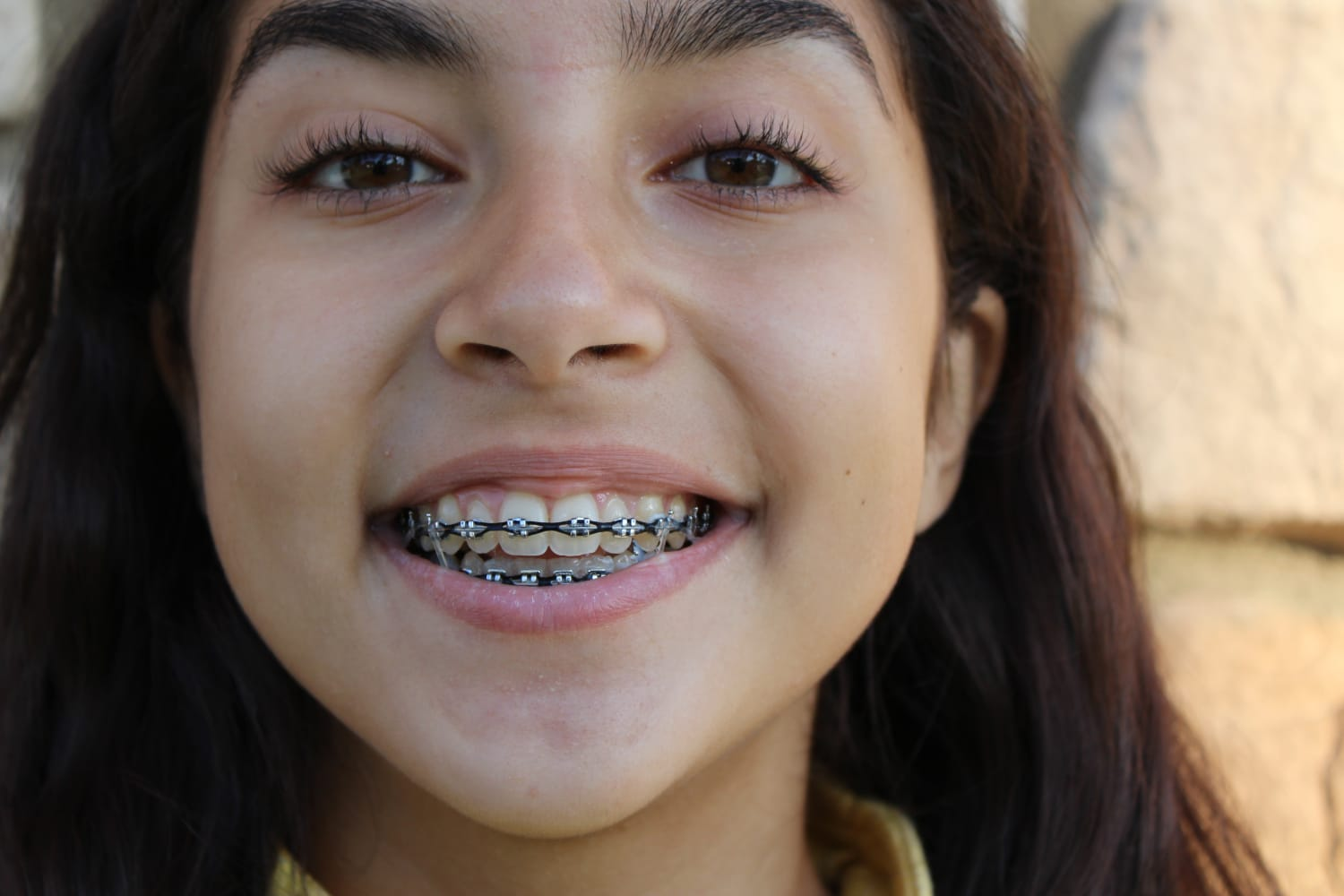 Types Of Braces Thurman Orthodontics